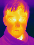 A Thermogram of a boy.  This image is part of a series.  The different colors represent different temperatures on the object. The lightest colors are the hottest temperatures, while the darker colors represent a cooler temperature.  Thermography uses special cameras that can detect light in the far-infrared range of the electromagnetic spectrum (900?14,000 nanometers or 0.9?14 µm) and creates an  image of the objects temperature..