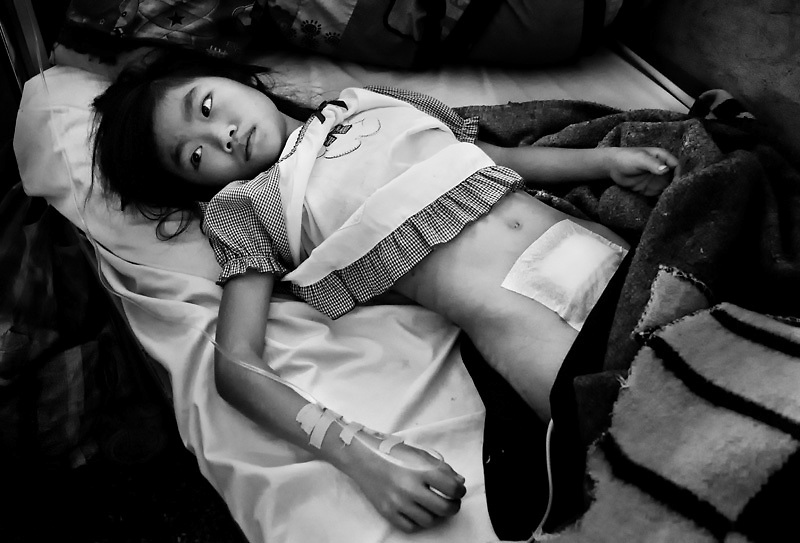 A young girl recovering after surgery removing kidney stones, Sainyabuli hospital, Laos. Men, women and children share the same ward.