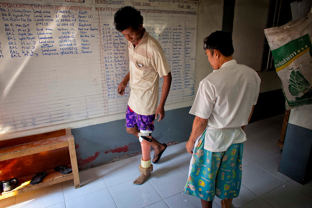 Agthan Kyi, a former soldier with the Democratic Karen Buddhist Army prepares to put on his new prosthetic limb at the Mae Tao clinic in Mae Sot, Thailand, Tuesday, Feb. 21, 2012.