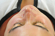 Chinese Acupuncture needle in a woman forehead