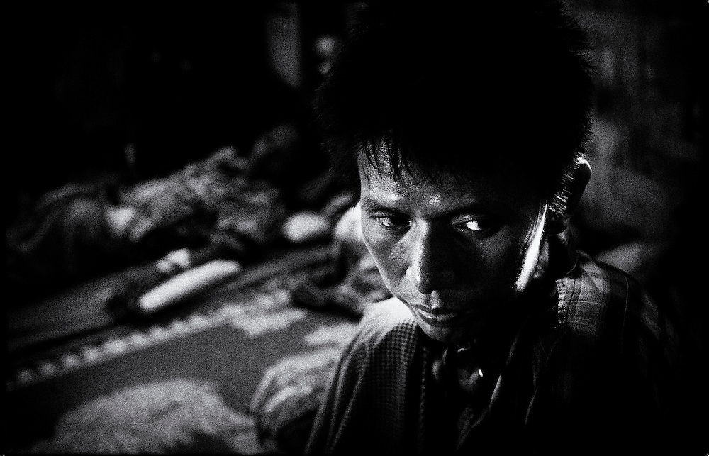 HIV Positive patient at the HIV & Aids Clinic on the outskirts of Yangon (Rangoon) Myanmar (Burma) January 2012