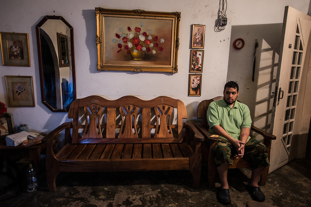 MARACAY, VENEZUELA - JULY 4, 2016: Schizophrenic Accel Simeone, who did not have all of the medicines that he needs the day this photo was taken, sits alone in his family's living room, but in his mind, the room was full of angry hip-hop artists like Nicki Minaj and Ñengo Flow, a Puerto Rican singer, that are sitting in every seat in the living room, insulting him, and demanding that he stay completely still - threatening to throw a bomb at him if he moves even the slightest bit. He asked politely that no one sits on the furniture until the musicians had left, in fear of making them upset by sitting on them. He said three musicians were sitting on the wooden bench to his right. The month before, Accel said the voice of Ñengo Flow, who torments Accel the most, demanded he kill his brother Gerardo. When he refused, he ordered him to cut off his arm, and so he attacked himself. He took an electric circular saw from the family's garage, switched it on and began slicing into his arm. Thankfully, his father found him and wrestled away the saw before he could do major damage to his arm.   PHOTO: Meridith Kohut for The New York Times