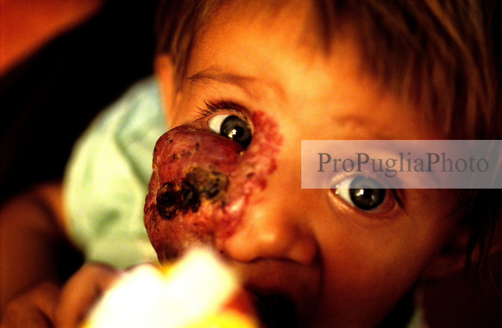 KABUL 06 August 2005....Shabana, a nine-months old Afghan girl, was originally diagnosed with 'Leishmaniasis' a parasitic disease spread by the bite of infected sand flies; then with 'Hemangioma' a tumor made-up of dilated blood vessels that usually appears shortly after birth; and finally with 'Neurofibroma'  a tumor or growth located along a nerve or nervous tissue..