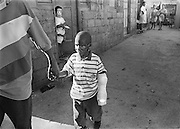 A boy wearing a Carnaval mask, in the doorway in background, watches as Robinson walks home with his dad following his surgery in Santo Domingo, Dominican Republic. Robinson was visiting an open-air market in the city with his grandmother when a gas tank exploded. In the blast, Robinson was shielded by his grandmother who did not survive the explosion.