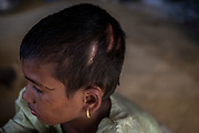 Rohingya refugee crisis. Noor Kalima (10) daughter of Dildar Begum, was attacked by Myanmar military and left for dead. Survivors of the massacre at Tula Toli (Min Gyi village) in Mayanmar. Balukhali refugee camp, Cox's Bazar District, Bangladesh - Photograph by David Dare Parker