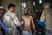 A severely malnourished man receives emergency treatment at a makeshift field clinic a kilometre from the frontline after escaping the Old City of Mosul.