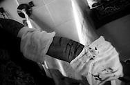 Roma Giugno 2000.Carcere di Rebibbia N.C..Detenuto mostra le ferite che si è procurato per un atto di autolesionismo..Rome June 2000.Prison Rebibbia N.C..Detainee shows the wounds which he got for a self-inflicted