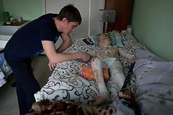Ukraina<br /> <br /> Artem, 7 &aring;r, ligger br&auml;nnskadad p&aring; ett sjukhus i Donetsk. Han har tredje gradens br&auml;nnskador p&aring; 60 procent av kroppen efter att en stridsvagn exploderat n&auml;ra honom och hans kusin. Kusinen Xantia, 9 &aring;r, dog p&aring; platsen. <br /> Artems pappa Alexander vakar &ouml;ver sin son.<br /> <br /> <br /> Photo: Niclas Hammarstr&ouml;m