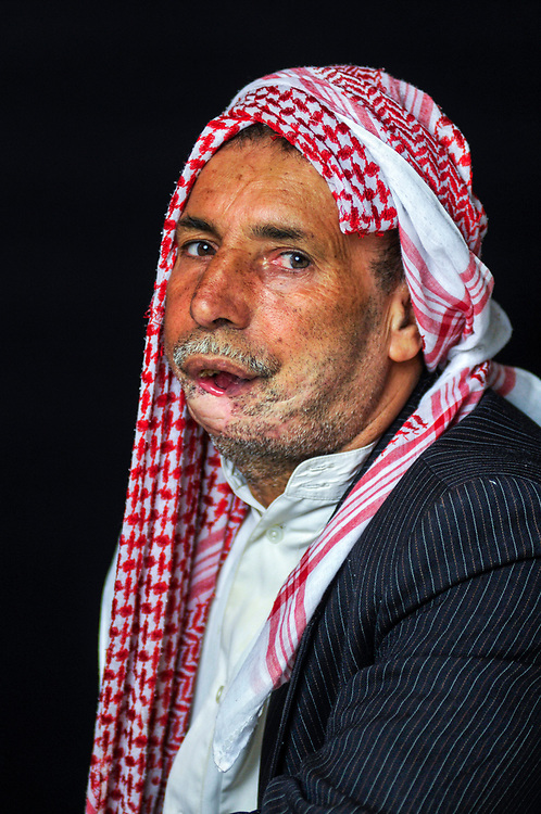 Dahi Ali, 51 years old, from Mosul, is a retired military officer and father of five children. While walking to the market one day, he was struck in the jaw by a stray bullet from clashes between militias and US forces. <br /> Amman, Jordan. 01/12/2011.