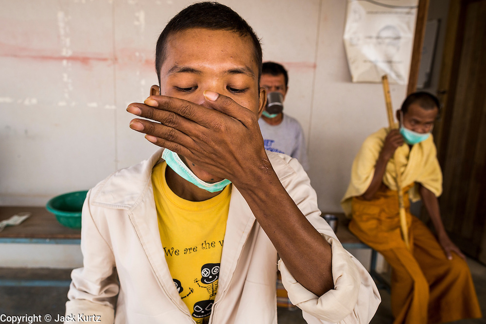 03 MARCH 2104 - MAE KASA, TAK, THAILAND:  A patient swallows some of the 20 pills he has to take every day for treatment of drug resistant tuberculosis at the Sanatorium Center for Border Communities in Mae Kasa, about 30 minutes north of Mae Sot, Thailand. The Sanatorium provides treatment and housing for people with tuberculosis in an isolated setting for about 68 patients, all Burmese. The clinic is operated by the Shoklo Malaria Research Unit and works with several other NGOs that assist Burmese people in Thailand. Reforms in Myanmar have alllowed NGOs to operate in Myanmar, as a result many NGOs are shifting resources to operations in Myanmar, leaving Burmese migrants and refugees in Thailand vulnerable. Funding cuts could jeopardize programs at the clinic. TB is a serious health challenge in Burma, which has one of the highest rates of TB in the world. The TB rate in Thailand is ¼ to ⅕ the rate in Burma.        PHOTO BY JACK KURTZ