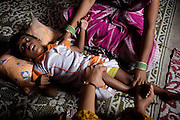 A child is taking part to a physiotherapy session at Chingari Trust, in Bhopal, Madhya Pradesh. The trust offers assistance, education, physiotherapy and advice to hundreds of children born from gas-affected parents or being fed highly contaminated water since a very early age, when the body is more likely to be affected and to suffer irreparable damage.