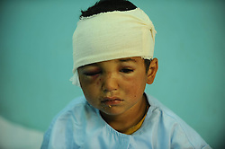 A Child wounded in Taliban military attack stay in hospital in Farah province of Afghanistan on April 3, 2013. Massive suicide bombing against government interests in Farah province, 695 km west of Afghan capital Kabul on Wednesday have left at least 53 including two attackers dead and injured more than 100 others, mostly civilians, April 3, 2013.. Photo by Imago / i-Images...UK ONLY..