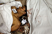 An Egyptian Coptic Christian youth lies dead October 10, 20011 at the Coptic Hospital morgue in Cairo, Egypt. At least 26 people, mostly Christian,  were killed during sectarian clashes that saw the worst violence since the Revolution that toppled former Egyptian president Hosni Mubarak earlier this year. Egyptian Coptic Christians make up about 10% of Egypt's 80 million population and periodically violence flares between the Christian minority and the majority Muslim population. (Photo by Scott Nelson