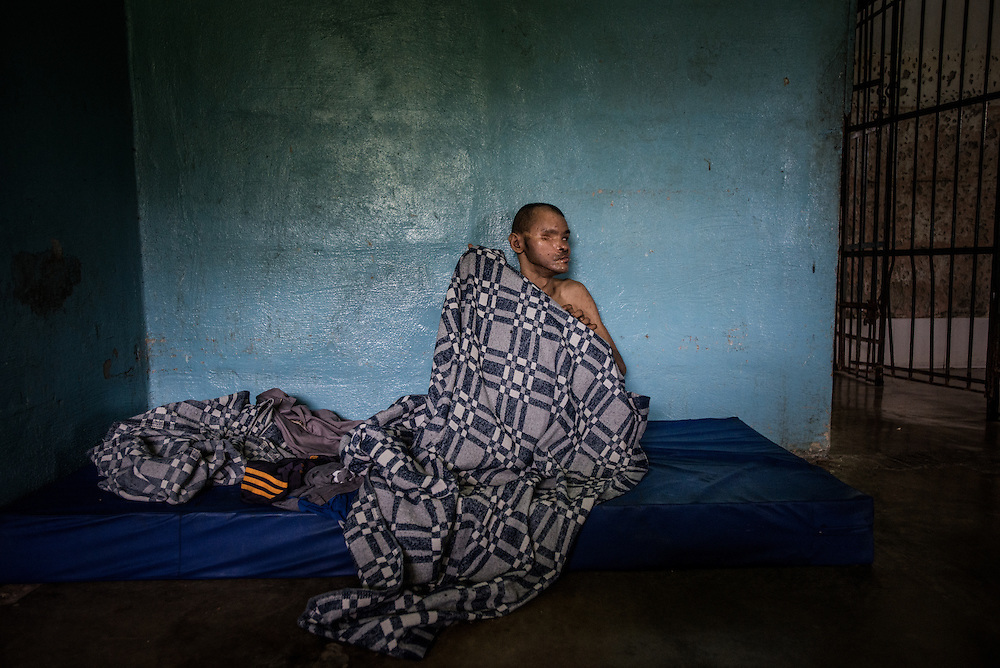 BARQUISIMETO, VENEZUELA - JULY 28, 2016: José Rojas sleeps on a mattress on the floor of his shared hospital room. Rojas suffers from psychosis and mental retardation. He was hit by a truck and injured very badly.  He lost his right eye and broke both of his feet.  He can barely walk now. The economic crisis that has left Venezuela with little hard currency has also severely affected its public health system, crippling hospitals like El Pampero Psychiatric Hospital by leaving it without the resources it needs to take care of patients living there, the majority of whom have been abandoned by their families and rely completely on the state to meet their basic needs. PHOTO: Meridith Kohut