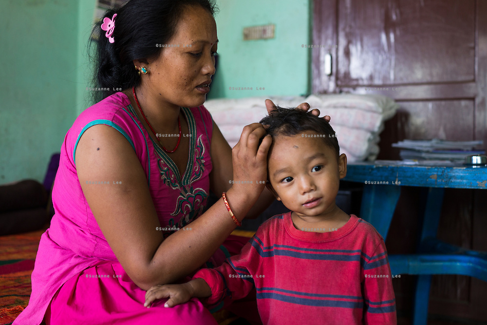 Nanimaiya Tamang (31) looks at the healing wounds of her nephew Sujal Tamang (2) who is now living with her in her apartment in Jorpati, Kathmandu, Nepal on 2 July 2015. Sujal was buried under the rubble of his collapsed house for 36 hours before rescuers found him injured with a broken leg next to his mother who was killed on the spot. Photo by Suzanne Lee for SOS Children's Villages