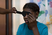 Sharon Juilette who received a glass eye at the Fred Hollows Foundation NZ outreach in Luganville, on the island of Santo, Vanuatu. August 2014<br /> <br /> Image James Ensing-Trussell/Topic