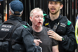 © Licensed to London News Pictures. 09/06/2018. London, UK. Police tend to an injured man outside Downing Street as 1000s of supporters of EDL founder Tommy Robinson ( real name Stephen Yaxley-Lennon ) demonstrate on Whitehall in Westminster after Robinson was convicted of Contempt of Court . Robinson was already serving a suspended sentence for Contempt of Court over a similar incident , when he was convicted on Friday 25th May 2018 . Photo credit: Joel Goodman/LNP