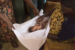 Maternal and infant mortality in South Sudan.