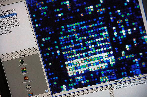 Nederland, Oss, 29-10-2007Gen onderzoek bij Organon. Genexpressie meten. In alle cellen staan bepaalde bepaalde genen 'aan' of 'uit' (ze komen al dan niet tot expressie). Genen in zieke cellen komen vaak op een andere manier (hoger of lager) tot expressie. Gezonde en zieke cellen. Mogelijk schakelen stofjes bepaalde genen aan of uit.  De hoeveelheid mRNA die  in  verschillende omstandigheden tot expressie komt, kan men meten met behulp van een DNA-micro-array.Foto: Flip Franssen