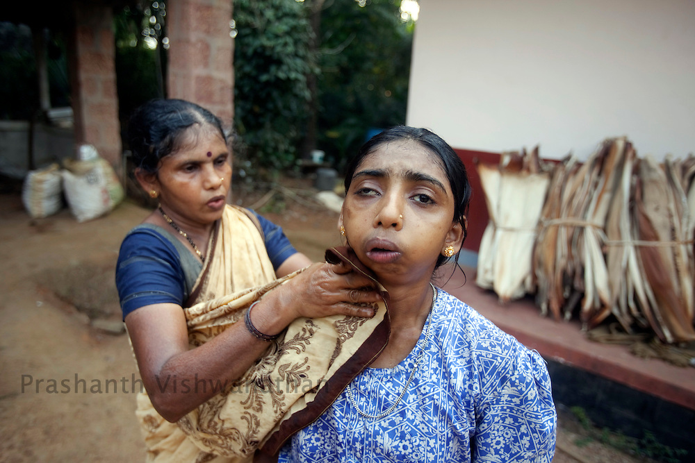 20 years old Tulsi, suffering from  bone disease, hip bone deformation and epilepsy is helped by her mother, outside her house in Kokadda, Belthangady Taluk, Karnataka, on Thursday March 4, 2010.  Photographer:Prashanth Vishwanathan/Bloomberg News
