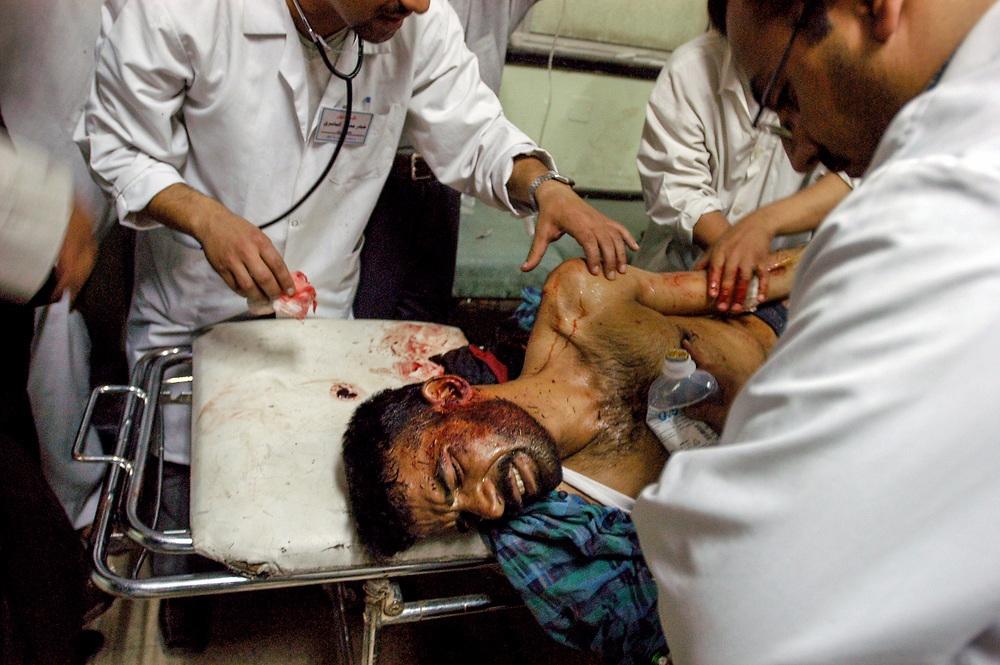 Doctors examine a man with multiple gun shot wounds at the al-Kadisia Hospital emergency room in Thora City, formerly known as Saddam City. The neighborhood is a vast slum of 3 million Shiite Muslims, long oppressed and marginalized by Saddam's regime. The area is a hotbed for the violence and insecurity that has thrived with the absence of authority in the country.<br /> Baghdad, Iraq. 06/05/2003.