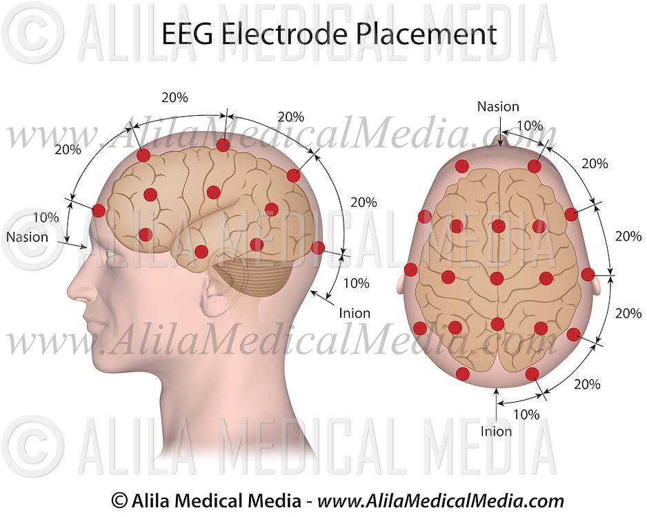 eeg electrode placement alila medical images