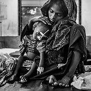 A young child suffering from anemia and severe malnutrition  at the Rohingyas children's ward of Sadar Hospital at Cox's Bazar. Cox's Bazar - 8 november 2017.<br /> Jeune  enfant Rohingya  souffrant d'anémie et de sévère malnutrition - quartier des enfants Rohingyas à l'hôpital Sadar de Cox's Bazar. Cox's Bazar le 8 novembre 2017.