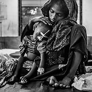 A young child suffering from anemia and severe malnutrition  at the Rohingyas children's ward of Sadar Hospital at Cox's Bazar. Cox's Bazar - 8 november 2017.<br /> Jeune  enfant Rohingya  souffrant d'an&eacute;mie et de s&eacute;v&egrave;re malnutrition - quartier des enfants Rohingyas &agrave; l'h&ocirc;pital Sadar de Cox's Bazar. Cox's Bazar le 8 novembre 2017.