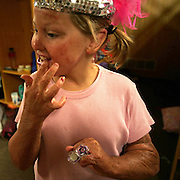 BURNCAMP - OKOBOJI, JULY 15 -- Caryn Stewart applies lip gloss inside her Miracle Burn Camp cabin Thursday, before going out for morning activities. Photo by David Peterson