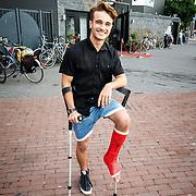 NLD/Hilversum/20150715 - Premiere Binnenstebuiten, Ralf Mackenbach met gebroken been op krukken