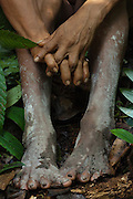 Huaorani Indian with splayed feet. Several of the Huaorani have these feet problems and there are some with 6 toes on each foot.<br /> Bameno Community. Yasuni National Park.<br /> Amazon rainforest, ECUADOR.  South America<br /> This Indian tribe were basically uncontacted until 1956 when missionaries from the Summer Institute of Linguistics made contact with them. However there are still some groups from the tribe that remain uncontacted.  They are known as the Tagaeri & Taromenane. Traditionally these Indians were very hostile and killed many people who tried to enter into their territory. Their territory is in the Yasuni National Park which is now also being exploited for oil.