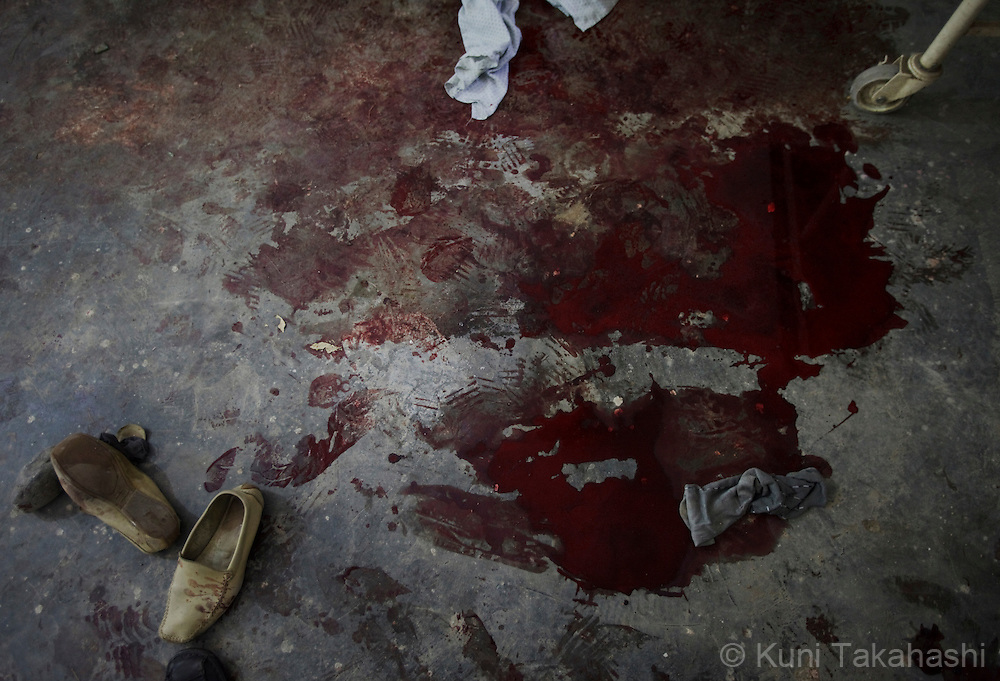 Blood of the victims of suicide bombings are left on the floor of morgue of a hospital in CHAHARIKAR, Parwan Province, 50km northwest of Kabul, Afghanistan on Aug 14, 2011. Six suicide bombers attacked the provincial governor's compound, allegedly killed 20. .(Photo by Kuni Takahashi)