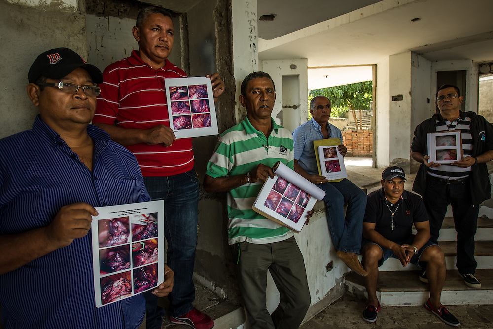SANTA MARTA, COLOMBIA - January 25, 2014:  Former Drummond coal mine workers that are members of the Drummond Sick Workers Association, (from left to right) Robinson Julio Rosario, 49, Yader del Cristo Perez Ricardo, 47, Rafael Daniel Choperena de Arco, 55, Marco Fidel Suarez Gastelbondo, 49, Anibal Perez, 39, and Adolfo Angel Acuña Patiño, 54, pose for a portrait with photographs of their blackened, cancer-stricken lungs.  The Colombian government temporarily shut down Drummond's port operations on the northern coast near the tourist destination, Santa Marta, demanding that the company comply to environmental regulations that restrict the amount of coal dust released into the air. Although environmentalists praise the government for cracking down on Drummond, the county's second largest coal exporter, they also note that violations continue being committed in the mines, where workers only given surgical masks for protection, suffer from lung cancer and coal worker's pneumoconiosis, far out of sight from beach-going tourists. Meridith Kohut for The New York Times