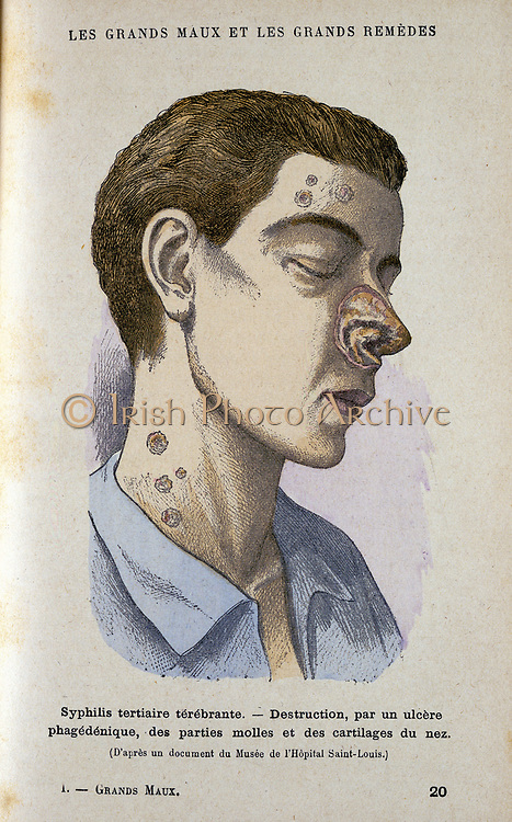Man suffering from tertiary Syphilis. From Jules Rengade 'Le Grands Maux et les Grands Remedes', Paris, c1890.