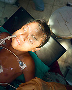 A boy under anesthesia is readied for surgery.