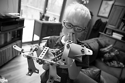 Forest Hoben shows off a robot dog he made while trying to pass the time social distancing during the coronavirus pandemic in the Hudson Valley, New York. Forest and Lotus Hoben, ages 10 and 6, were adopted from China and have albinism, a rare group of genetic disorders that cause the skin, hair, or eyes to have little or no color. Albinism is also associated with vision problems. According to the National Organization for Albinism and Hypopigmentation, about 1 in 18,000 to 20,000 people in the United States have a form of albinism.