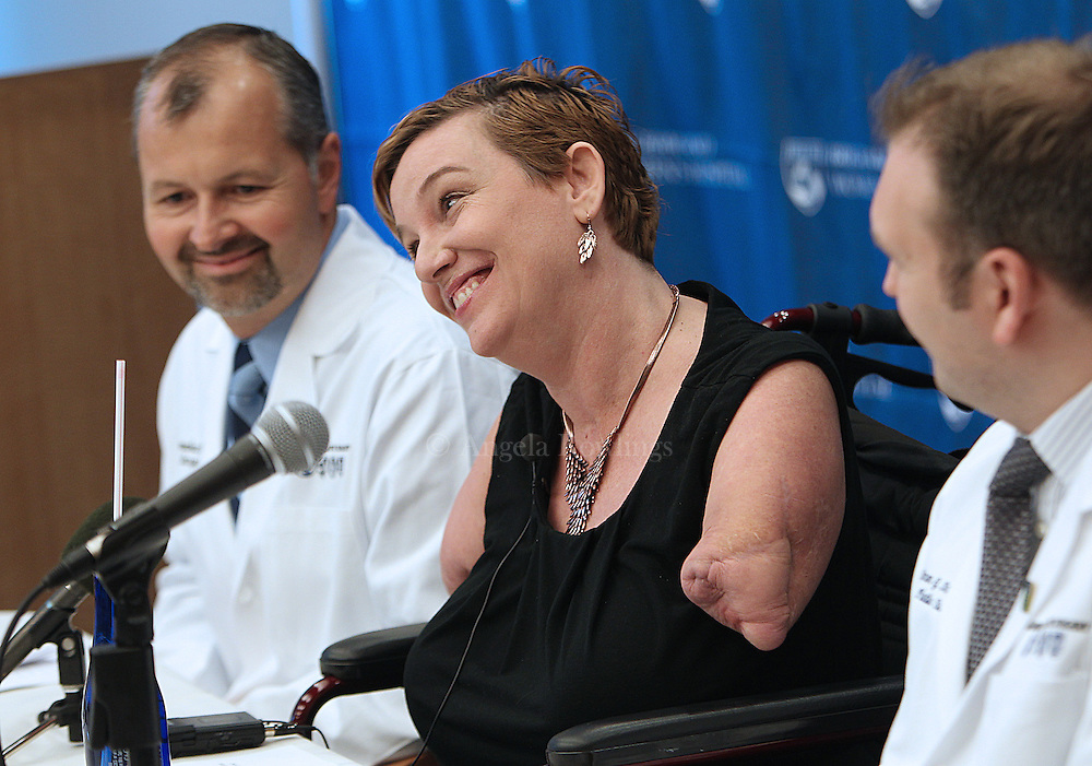 (091212  Boston, MA) Quadruple amputee Katy Hayes says she is excited that she will receive an arm transplant at Brigham and Women's Hospital, Wednesday,  September 12, 2012. With her are Dr. Bohdan Pomahac, Director of Plastic Surgery Transplantation, left, and Dr. Simon G. Talbot, Surgical Lead on the Hand Transplant Team at Brigham and Women's Hospital.  Staff photo by Angela Rowlings.