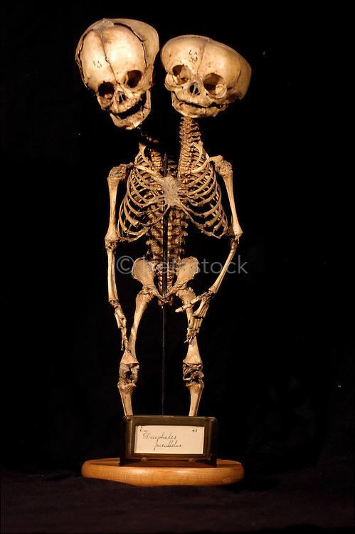 Skeleton Of A Siamese Twin Betastock