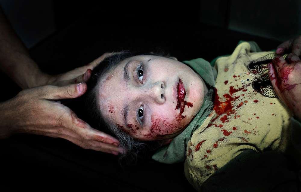 Aleppo, Syria. Dar al-Shifa hospital. FSA-Free Syrian Army.<br /> Dania Kilsi, 11, is treated for shrapnel wounds in Dar al-Shifa hospital in Aleppo. She and her two younger siblings, Zaid, 2 and Fatima 6, were playing outside their home when they got injured from a bomb.<br /> Photo:Niclas Hammarstrom<br /> 2012-10-15