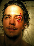 A branch punctured my face! Tree climber suffers bizarre injury that's sure to raise a few eyebrows<br /> <br /> Tree tops are for the birds as this man found out when he took his eye off the dangers and nearly lost his sight.<br /> But Colby Ellis just couldn't resist the temptation to climb some mountain timbers, and almost paid the ultimate price when he slipped.<br /> A small branch pierced the fleshy parts under his left eyebrow, and an even smaller trig almost took out the eyeball itself.<br /> <br /> But while these hospital snaps may have made your legs tingle just a little, the good news he has made a full recovery.<br /> And it still hasn't put him off climbing tree.<br /> The 22-year-old said: 'I am currently doing seasonal work in the Nantahala Gorge in North Carolina.<br /> 'I give zip line tours at the Nantahala Gorge Canopy tours, but this accident had nothing to do with work.<br /> 'A co-worker, Micah Loyd, and I had the day off and decided to go explore the mountain. I spotted a series of vines going up a tree and decided to climb them.<br /> 'When I was about five feet up, the vine gave way. I landed on my feet but when I bent to absorb the landing, a branch punctured my face.<br /> <br /> 'I was very shocked the first few moments, but luckily Micah and I are both trained in first aid, so we knew not to take it out.<br /> 'Or for that matter to move my eye in case the smaller stick went into the eyeball itself. Micah was great help keeping me calm and leading me through the woods to the road.<br /> 'Someone stopped and gave him a ride to get his vehicle so we could take that to the hospital.<br /> <br /> 'I did not want to pay for an ambulance if I could help it as they are quite expensive here. We then drove to the hospital in nearby Bryson, but they don't have a trauma centre.<br /> 'Staff there were great and stabilised the injuries and sent me in an ambulance to Mission hospital in Asheville.<br /> 'Once there, they were able to remove both sticks successfully. Amazingly, I still had my full vision. After that I just needed a few sets of stitches and an ey