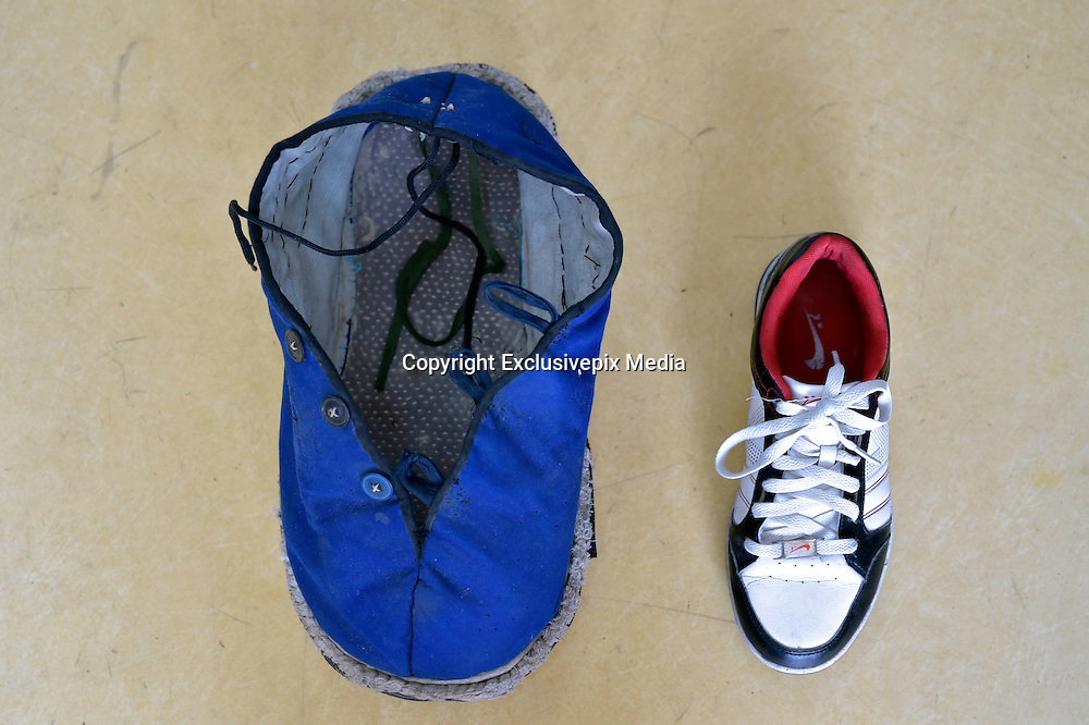 CHONGQING, CHINA - APRIL 27: (CHINA OUT) <br /> <br /> One foot bigger than the other<br /> <br />  Two different sizes of twenty-one-year-old boy Liu Huichang\'s shoes on April 27, 2015 in Chongqing, China. Twenty-one-year-old boy Liu Huichang from Qu County of Sichuan province suffered macrodactyly that his right foot was in 43 centimeters long and 14 centimeters thick. The weird and ugly right foot troubled his life and work and so he had to operate on it. <br /> ©Exclusivepix Media