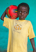 ABUSHE, THE CHILD WITH PLASTIC EYES<br /> <br /> Abushe lives in Jinka, southern Ethiopia, which is the gateway to the Omo Valley tribes. He is 8 years old. Like hundreds of other children, he wanders in the streets, where he kicks a ball in endless football games with friends his age. They have turned the sidewalks into their own Maracana but are regularly chased away by the banks and shopkeepers.<br /> <br /> No one would pay any attention to Abushe, who is dressed in a yellow t-shirt decorated with a clown fish that is too big for him, but if you catch a glimpse of his eyes, their incredible magnetic colour will stop you in your tracks. If the region was not so remote and saw only few visitors, one would ascribe it to the effects of great miscegenation, but Abushe actually suffers from the Waardenburg syndrome.<br /> <br /> One of the characteristics of this syndrome is an abnormal spacing between the eyes – which is moderately the case for Abushe – but mainly a special pigmentation of the irises. This phenomenon is rare and is thought to occur every 300,000 births on all continents. Its effects are obviously striking on a child with black skin like the little Ethiopian.<br /> <br /> In Africa, being outside the norm will often mean humiliation, or worse, persecution or even ritualistic crimes, as with albinos whose nails, fingers or hands are sold for a fortune to businessmen or politicians seeking better luck.<br /> <br /> Abushe's father has died and his mother is struggling to raise him. She had to go work on a farm several hours away from Jinka for a few months for the small salary of 1.50 euros per day – hardly enough to survive, especially after paying the 5 euro monthly fee for the school.<br /> So, his grandmother is taking care of him. He was living and sleeping in her tukul, the traditional hut made of wood, adobe and thatch, when one night, a fire broke out. In the middle of the tukuls, there is always a fireplace which is used to cook, to repel insects and to provide heat at night.<br /> <br /> <br /> <br /> <br /> <br /> <br /> <br /> <br /> <br /> <br /> <br /> Abushe and his g