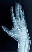 x-ray image of operated on the broken third metacarpal bone in the hand