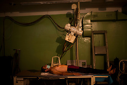 A man gets an X-Ray at the TB Hospital in Balti.