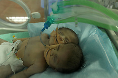 Gaza: Conjoined twin boys at the hospital in Gaza City, 23 Nov. 2016