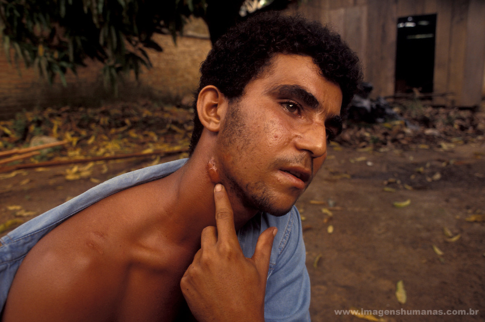 Contemporary slavery in Amazon rainforest, Brazil. Victim of torture. Slave work in the forest clearance job. Human rights violation.
