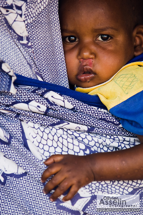 A refugee child from Central African Republic rests on the back of his mother as they wait for food distribution at the Garga Sarali integrated health center in the town of Garga Sarali, near Bertoua, Cameroon, on Tuesday September 15, 2009.