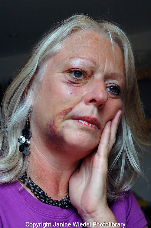 Woman badly bruised and beaten up.