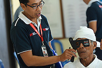 Cataract surgery patient having his vision checked the day after surgery, Bali, Indonesia.
