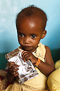 A malnourished girl eats from a packet of Plumpy nut therapeutic food at the UNICEF-sponsored Mao therapeutic feeding center in the town of Mao, Kanem region, Chad on Monday February 13, 2012.